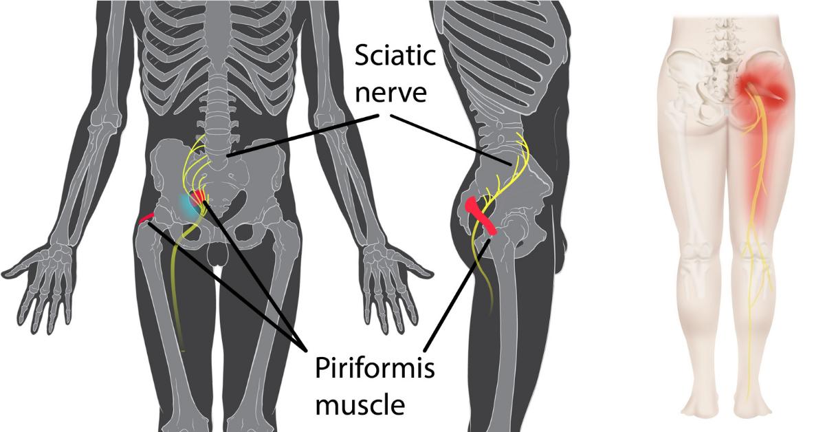 Mięsień gruszkowaty a ból krzyża i pośladka | Zespół mięśnia gruszkowatego