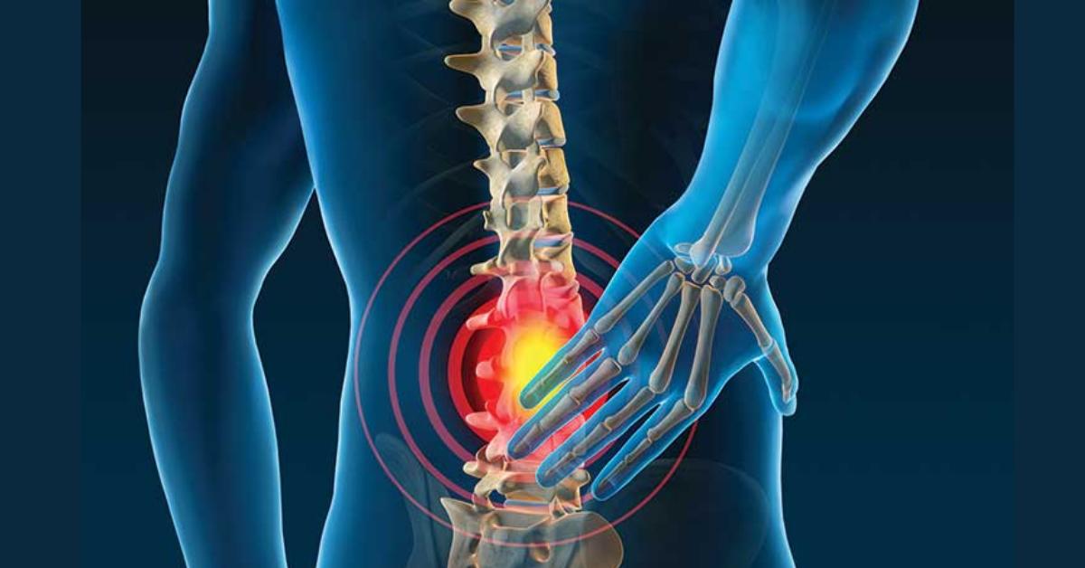 Przepuklina a biomechanika odcinka lędźwiowego | prostować czy zginać? (ból pleców #3)